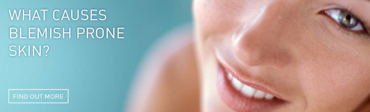 what causes blemish prone skin