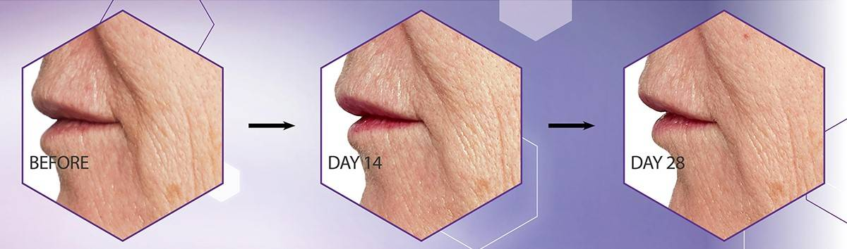 Firmer looking skin within 28 days†