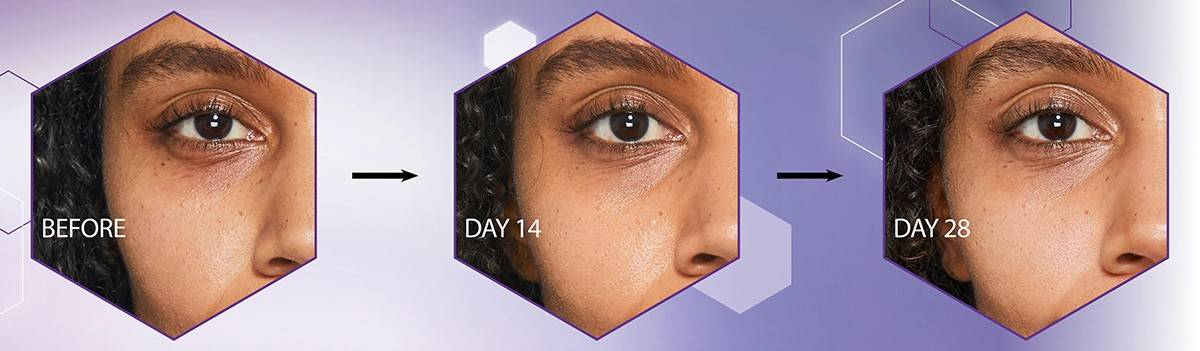 Healthier, younger looking skin within 28 days