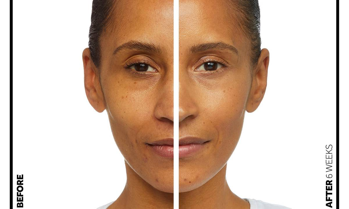 Retinol before and after image