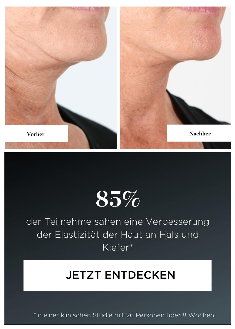 85% der Teilnehme sahen eine Verbesserung der Elastizität der Haut an Hals und Kiefer*.