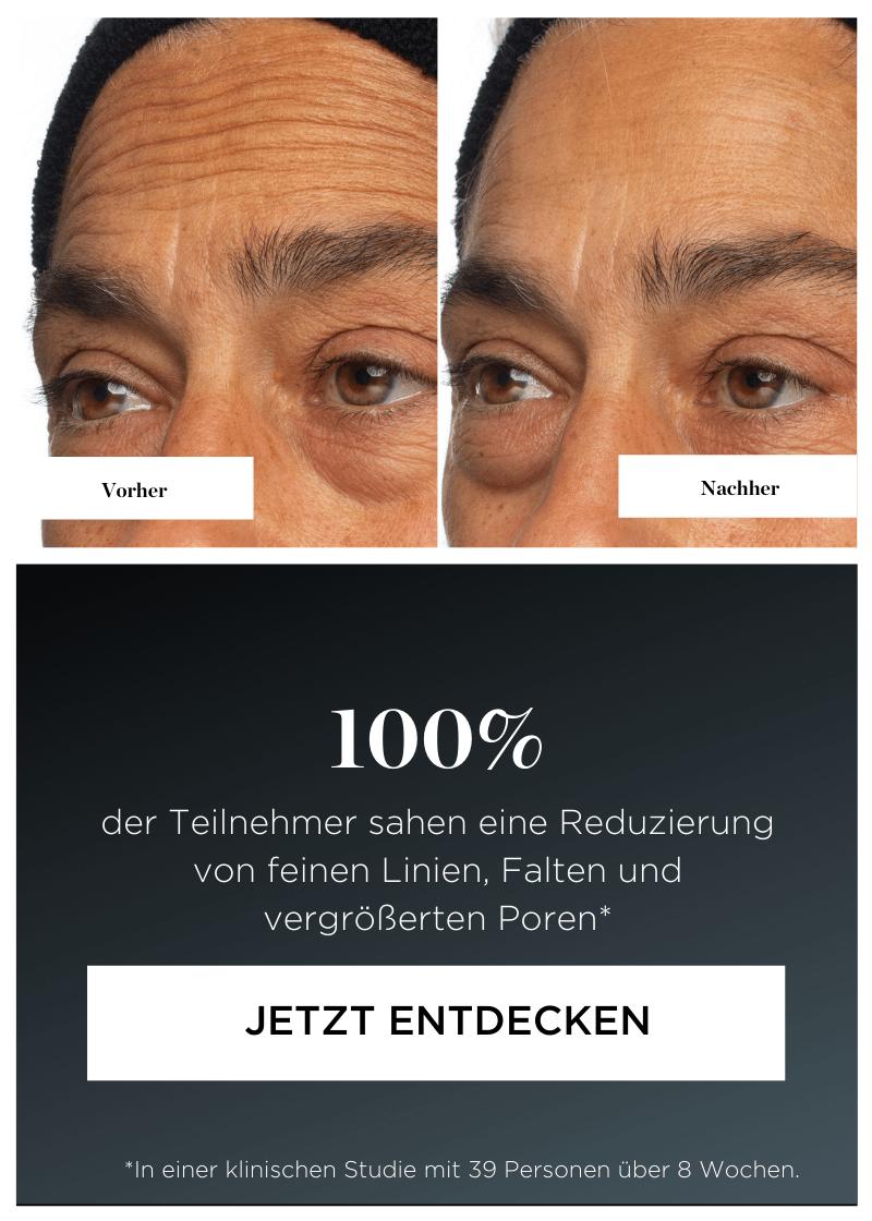 100% der Teilnehmer sahen eine Reduzierung von feinen Linien, Falten und vergrößerten Poren.*