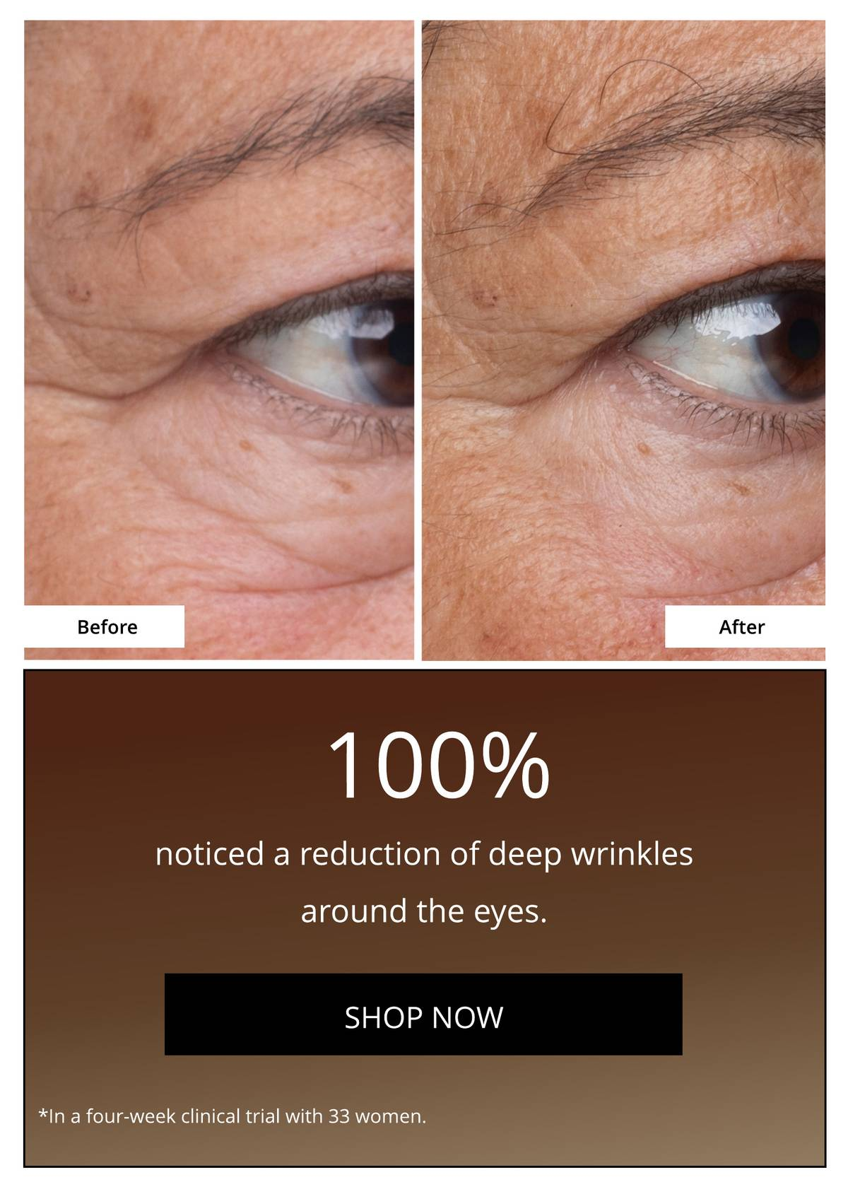 New Growth Factor Eye Serum