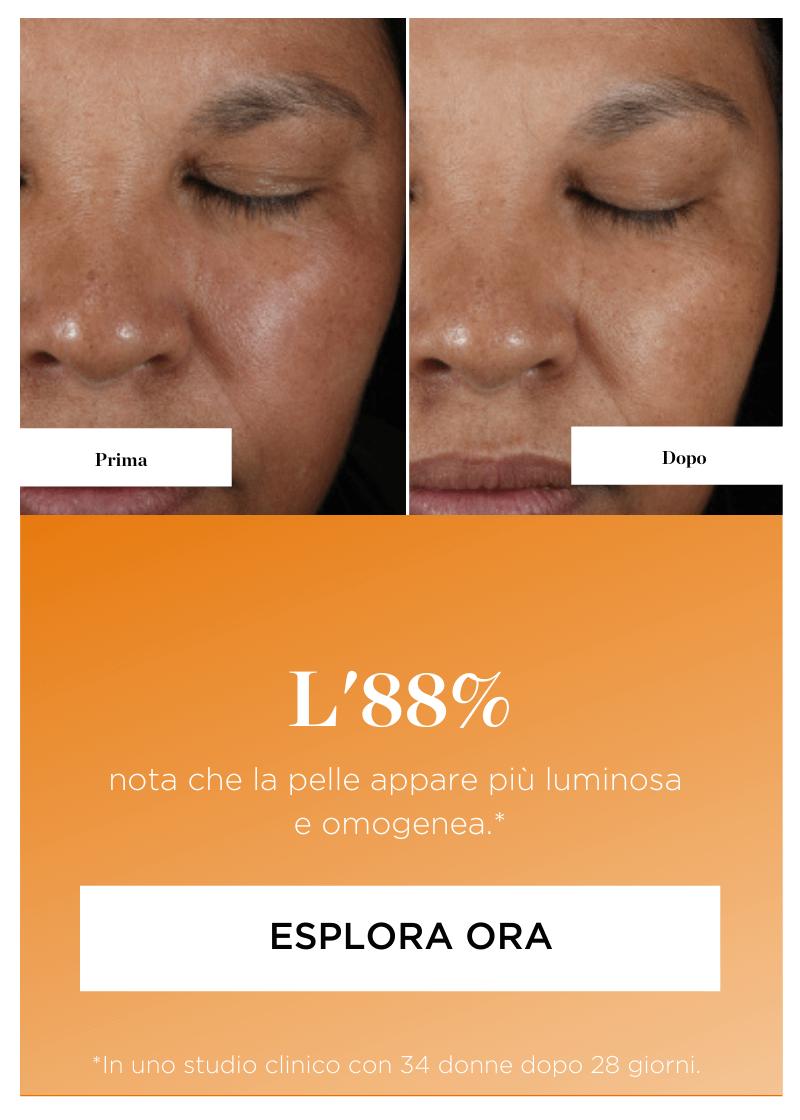 I risultati Perricone MD. Prima e dopo - L'88% nota che la pelle è più soda. Esplora ora.