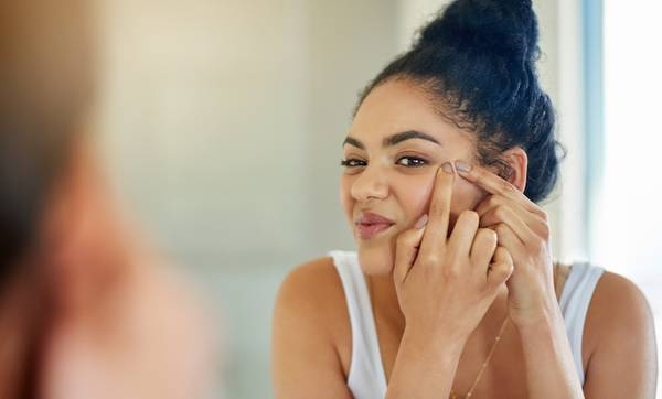 Here's How to Get Rid of Blackhead Acne—Naturally