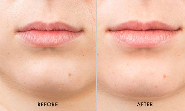 We Tried SkinMedica's HA5 Smooth & Plump Lip System, Here's What Happened