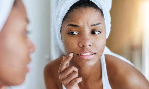 How to Diagnose Your Specific Type of Acne and Treat It Properly