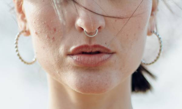How I Finally Cleared Up My Adult Acne, With a Dermatologist's Help