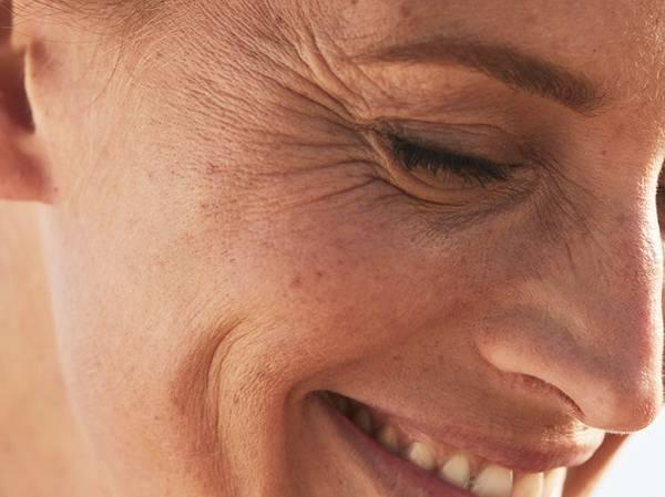 DEEP WRINKLES AND SLACKENING Slackening and very marked skin