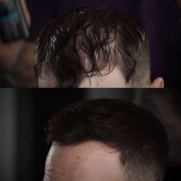 Before and after of man's head with less hair and fuller hair Visit Our Instagram